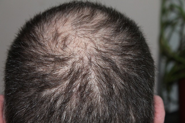 Hair Loss and Stressful Situations
