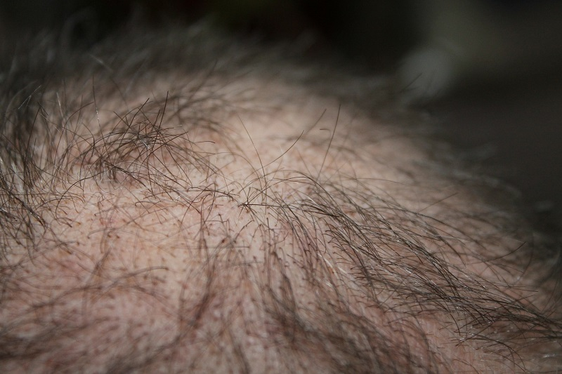 5 Steps to Get to the Root of Hair Loss