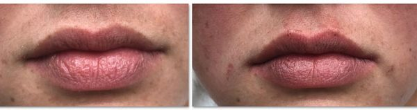 Before and After Lip Augmentation with Microcannulas (actual patient)