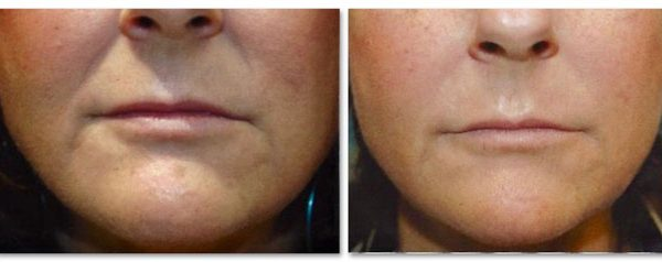 Before and After Fillers for Nasolabial (Smile Lines) Folds (actual patient)