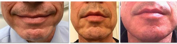 Before and After Botox® and Fillers to Chin and Jaw (actual patient)