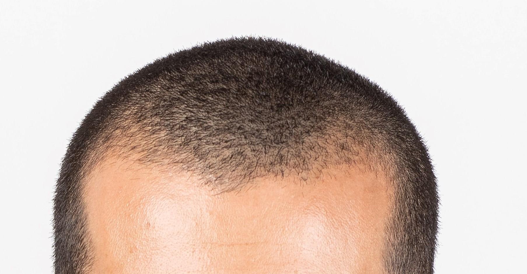 Helpful Ways to Restore Hair and Balance Hormones