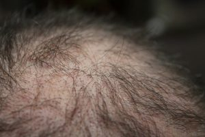 10 Things You Should Know About Hair Loss